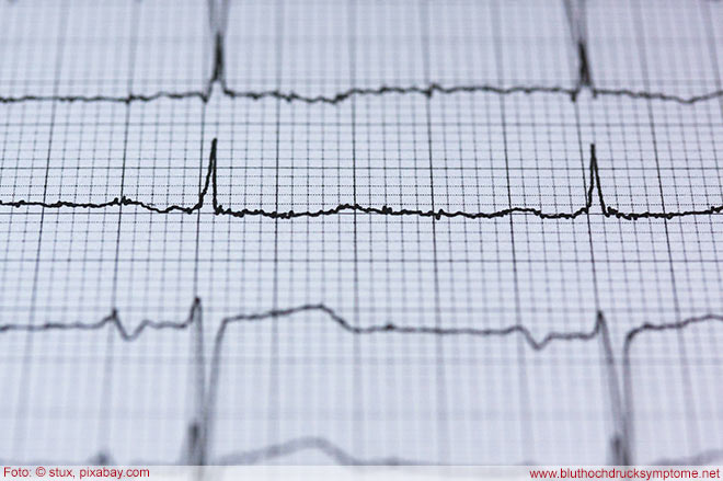 Richtwerte für Bluthochdruck gesenkt - Ein EKG misst die Herzschläge - Herzkranken stehen oft im Zusammenhang mit Bluthochdruck.